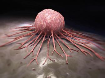 خواص زعفران برای سرطان